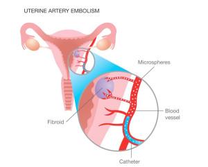 Embolizarea arterei uterine